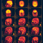 MRI Resonance Imaging is one of our examples of health informatics coming in the near future